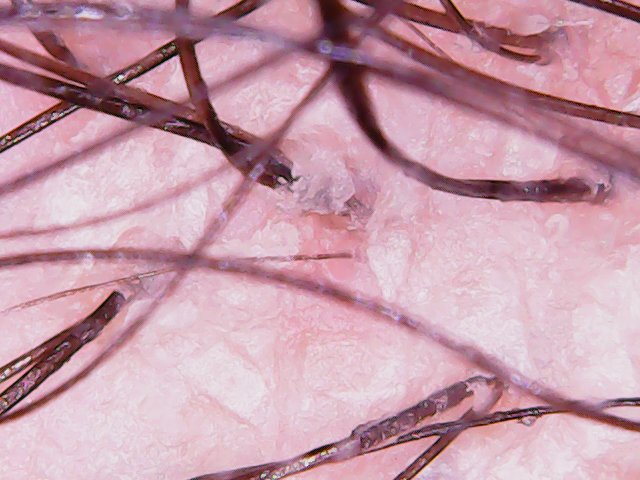 Microscopic pic of scalp after shampoo